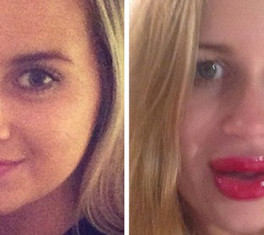 Girl FAILS When Trying A New Gadget That Gives You 'Kylie Jenner lips'
